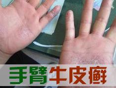 手部银屑病有什么哪些症状